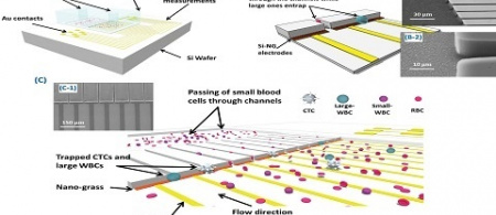 Nanoelectromechanical Chip (NELMEC) Combination of Nanoelectronics and Microfl uidics to Diagnose Epithelial and Mesenchymal Circulating Tumor Cells from Leukocytes